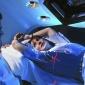 Подмышечная лучевая терапия связана с меньшим количеством побочных эффектов, чем лимфодиссекция